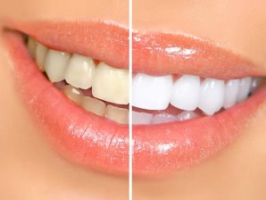 before and after woman teeth photo